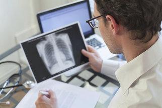 Tuberkulóza zabíjí v Česku méně lidí: Novým rizikem je biologická léčba