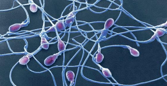 Objevy týdne: Plavající spermie vypadají jako mořské výtvory a lekce historie od Jana Zahradila