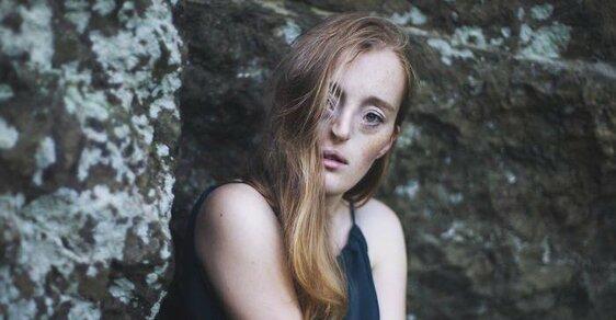 Krásná ve své nedokonalosti: Modelka se vzácnou genetickou vadou oslnila svět