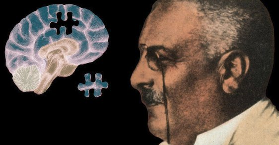 Alois Alzheimer: Bláznivý lékař s mikroskopem