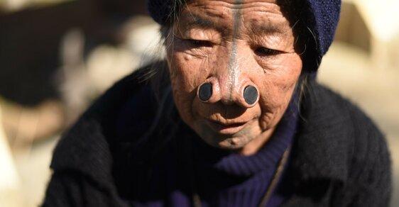 Krutá tradice ze severu Indie: Znetvoření obličejů žen jako ochrana před únosy