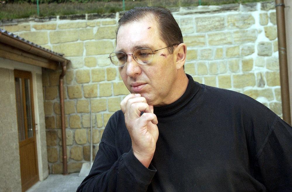 Petr Kott opilý spadl ze schodů, pak tvrdil, ze se stal obětí útoku.