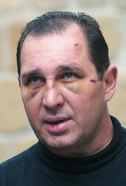"""Kott se """"proslavil již mnohem dříve. V roce 2003, kdy byl poslancem, tvrdil, že spadl ze schodů. Za podlitiny v jeho obličeji ale zřejmě mohl alkohol."""