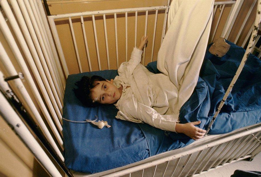 Dítě se zlomenými boky leží v Kosovské nemocnici, Sarajevo 1994