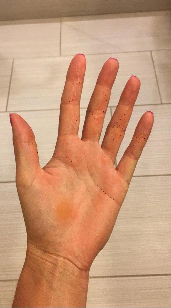 Zahojená ruka Petry Kvitové