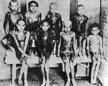 Mengeleho experimenty na dětech v koncentračním táboře Osvětim.