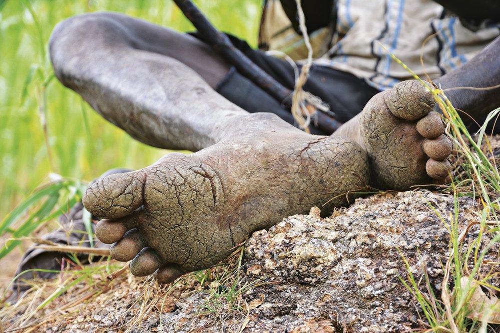 Ani obuv není pro zdejší lidi nic nezbytného