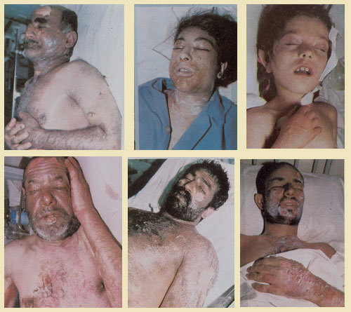 Lidé s následky chemického útoku Iráku na Sardaš v roce 1987