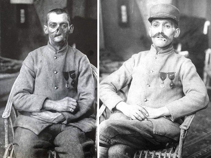 Tváře některých zraněných byly stěží rozpoznatelné