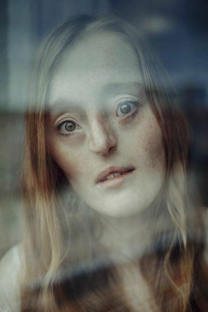 Modelka Ilka Brühlová ukazuje, že dokonalý vzhled není všechno