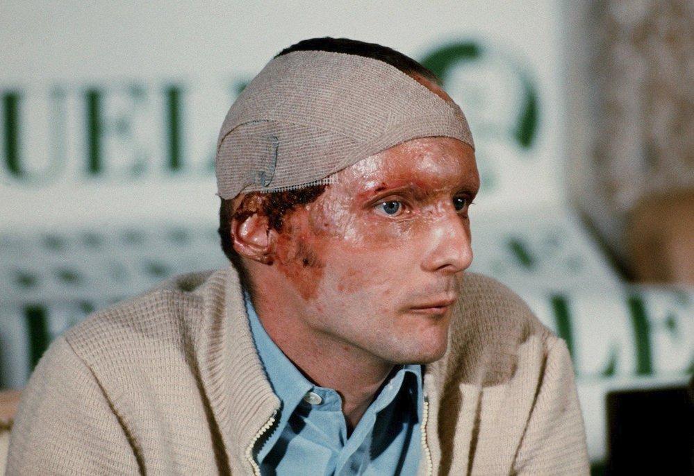 Niki Lauda po nehodě