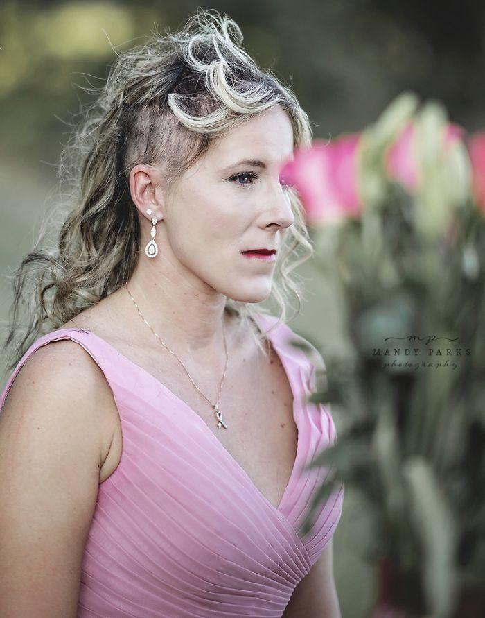 Manželá nafotili sérii dojemných a nadějeplných snímků přípravy na boj s rakovinou