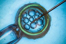 Majitel kliniky pro umělé oplodnění používal podvodně své vlastní sperma, narodilo se z toho 60 dětí