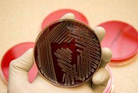 Antibiotika přestávají pomáhat. Američanka zemřela na neobvykle rezistentní infekci