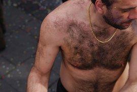 Intenzivní pulsní světlo pomáhá navracet sebevědomí mužům, kteří trpí nadměrným ochlupení