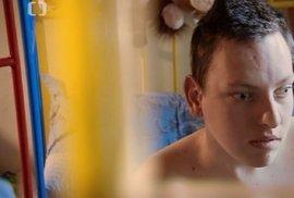 Míša z dokumentu Děti úplňku trpí nízkofunkčním autismem.