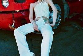 Melanie Gaydosová trpí zvláštní genetickou poruchou, přesto se stala známou modelkou