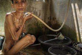 Špína, beznaděj a nazí nemocní držení v poutech. Drsné snímky ukazují život mentálně postižených Indonésanů