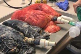 Zdravotní sestřička ukázala, jak neskutečný rozdíl je mezi plícemi kuřáků a nekuřáků