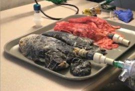 Plíce kuřáků ztrácí elasticitu.