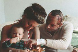 Pyšný táta Niki Lauda krátce poté, co přežil šílenou nehodu, při které utrpěl rozsáhlé popáleniny