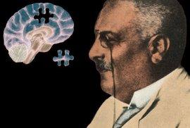 Alois Alzheimer objevil nemoc, která tehdy nikoho nezajímala. Dnes jí trpí 7 milionů lidí