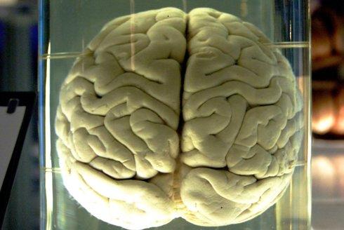 Neurotický otazník: Jak fungují neurony v mozku?