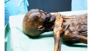 Nemocné mumie: Dávné stopy moderních neduhů